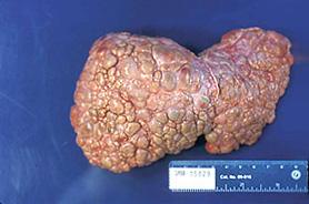 Конечная стадия цирроза печени